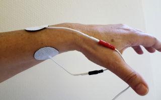 Бурсит кисти руки (воспаление суставной сумки)