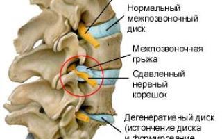 Лечение грыжи позвоночника гомеопатическими препаратами