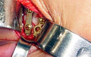 Репозиция перелома костей: показания, виды процедуры