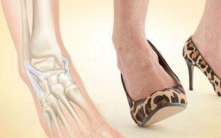 Растяжение связок стопы: причины, лечение, симптомы