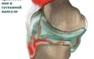 Артротомия сустава — виды операции, осложнения