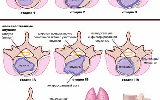 Саркома позвоночника — причины, симптомы и лечение