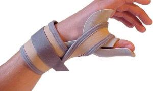 Растяжение связок кисти руки: симптомы, лечение