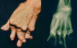 Синдром Фелти: что это такое и как лечить