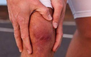 Артропатия — почему возникает и как лечить заболевание