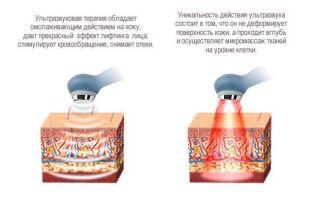 Артрит челюстно-лицевого сустава: симптомы и лечение