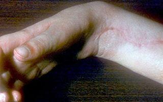 Дактилит пальцев: что это, причины развития, симптомы и лечение