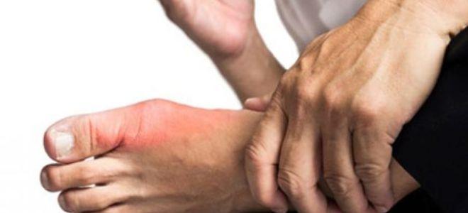 Употребление сухофруктов при лечении подагры