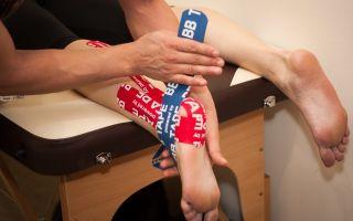 Тейпирование при плоскостопии: схемы, отзывы пациентов
