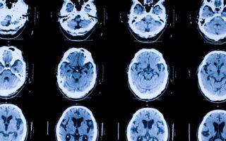 Миоклоническая судорога: причины, лечение и профилактика