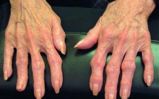 Генерализованный остеоартроз: что это такое, симптомы и лечение