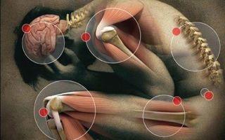 Миофасциальный синдром — причины, симптомы и лечение