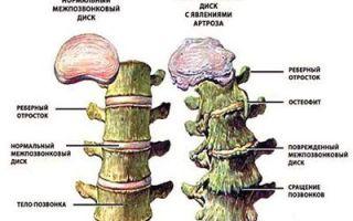 Остеофиты поясничного отдела позвоночника: симптомы и лечение