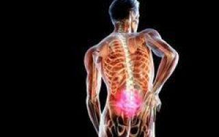 Киста позвоночника — причины, виды и лечение