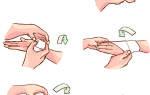 Ушиб кисти руки: симптомы, первая помощь и методы лечения