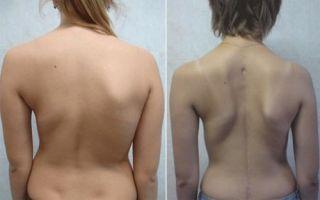 Шейный сколиоз: причины, симптомы, лечение, диагностика