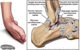 Разрыв связок стопы: причины, лечение, симптомы