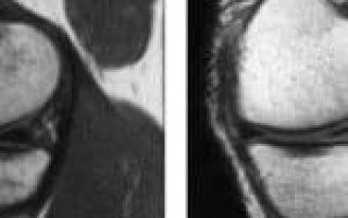 Степени повреждения мениска: классификация по Stoller