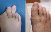 Шишка на мизинце ноги: причины и лечение