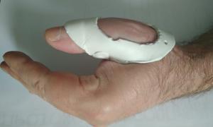 Растяжение связок пальца руки: причины, лечение, симптомы