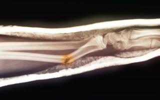 Препараты при переломах для быстрого срастания костей – обзор лучших лекарственных средств