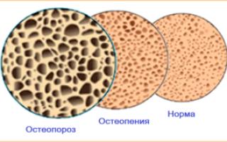 Можно ли делать массаж при остеопорозе