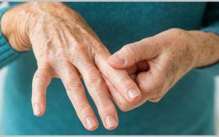 АЦЦП при ревматоидном артрите: норма и расшифровка анализа