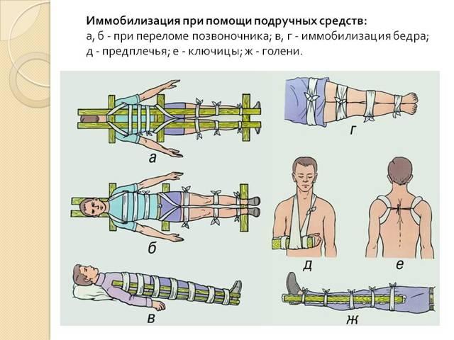 Наложение шины дитерихса при переломе бедра