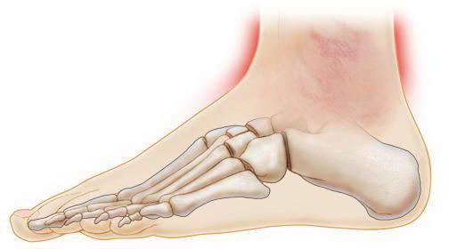Воспаление голеностопного сустава: причины, лечение и симптомы