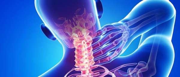 Сужение сосудов шейного отдела позвоночника: причины и лечение