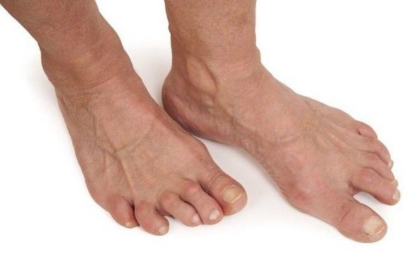 Артроз пальцев ног: симптомы, лечение, фото