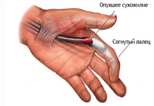 Лигаментит: причины, симптомы, диагностика и лечение