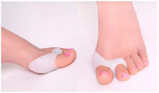 Косточки на больших пальцах ног лечение
