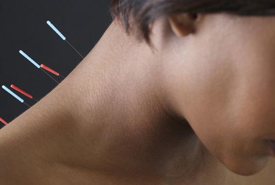 Иглоукалывание при остеохондрозе шейного отдела