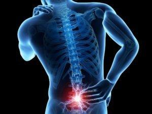 Радикулопатия пояснично-крестцового отдела позвоночника