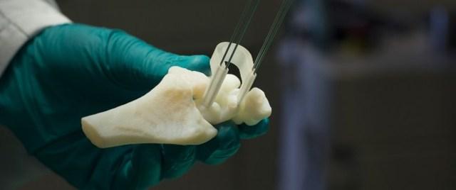 Как делается остеотомия бедренной кости тазобедренного сустава
