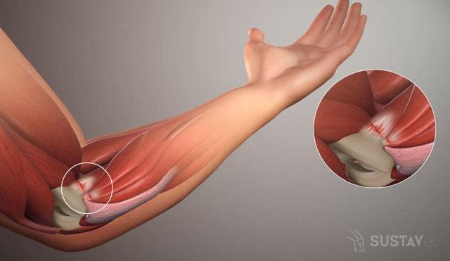 Боль в локтевом суставе при поднятии тяжести