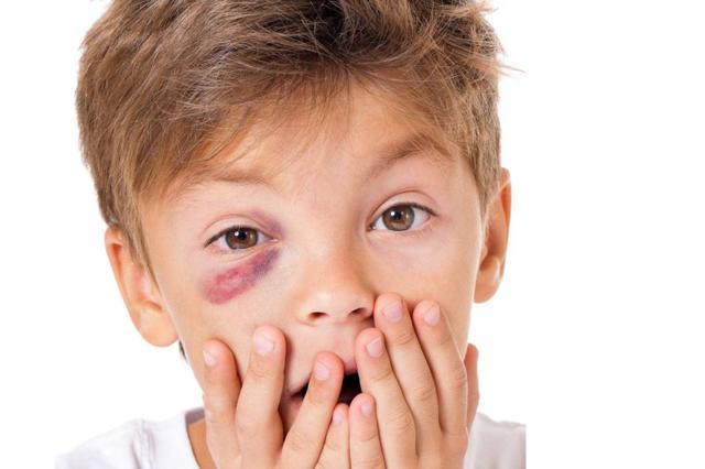 Перелом глазницы: симптомы, первая помощь и лечение