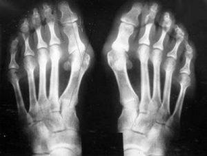 Артроз стопы: симптомы и лечение, фото