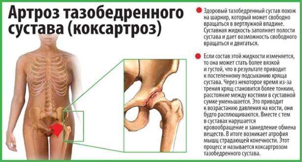 Артроз тазобедренного сустава 2 степени: симптомы и лечение