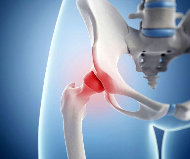 Воспаление тазобедренного сустава: причины, симптомы и лечение