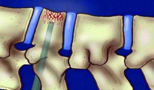 Костная киста: причины, симптомы и способы лечения