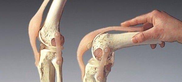 Экзостоз: причины, виды и лечение костно-хрящевого разрастания