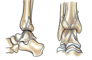 Рентген голеностопного сустава: показания и проведение