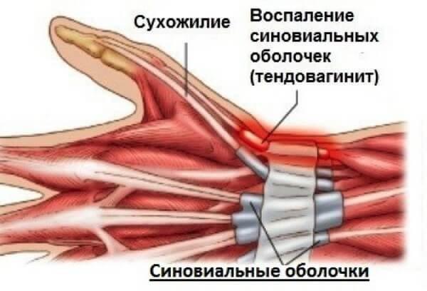 Тендовагинит лучезапястного сустава: лечение, причины