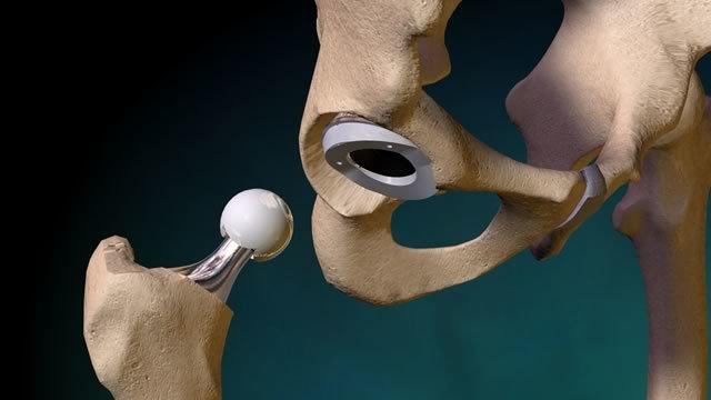 Ревизионное эндопротезирование суставов: показания, проведение