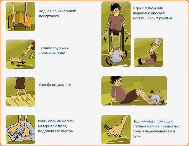 Бурсит большого пальца стопы ноги: симптомы и лечение
