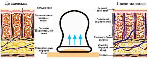 Баночный массаж при остеохондрозе позвоночника