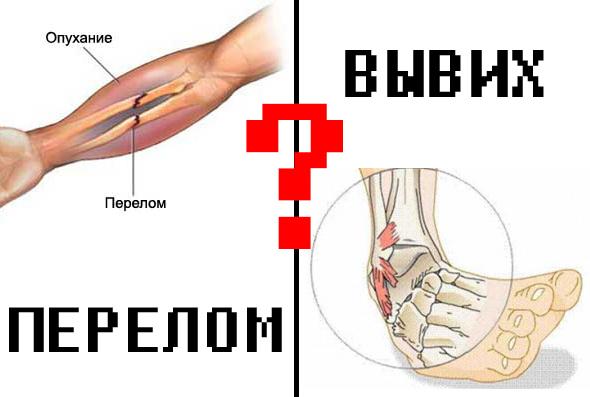 Симптомы перелома ключицы и способы его лечения