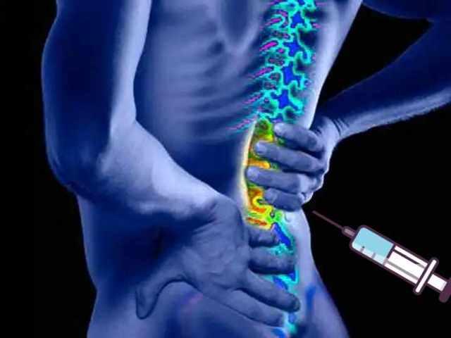 Уколы от боли в спине: группы и названия препаратов